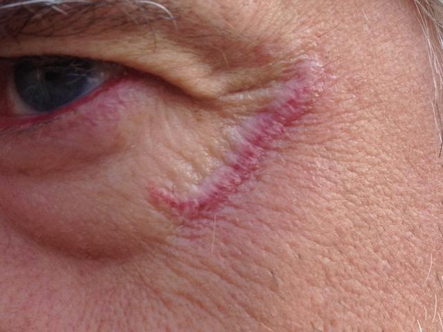 litteken oog